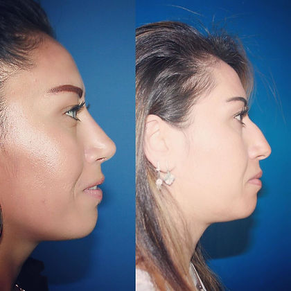 rhinoplasty before after 9