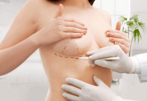 Brustverkleinerungschirurgie