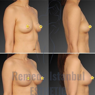 Breast Surgery Before After 34