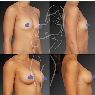 Breast Surgery Before After 29