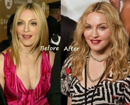 Madonna's Plastic Surgeries