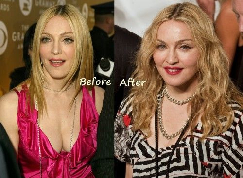Madonna before after plastic surgery