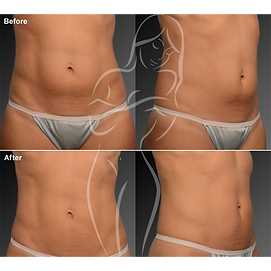Liposuction before after 9