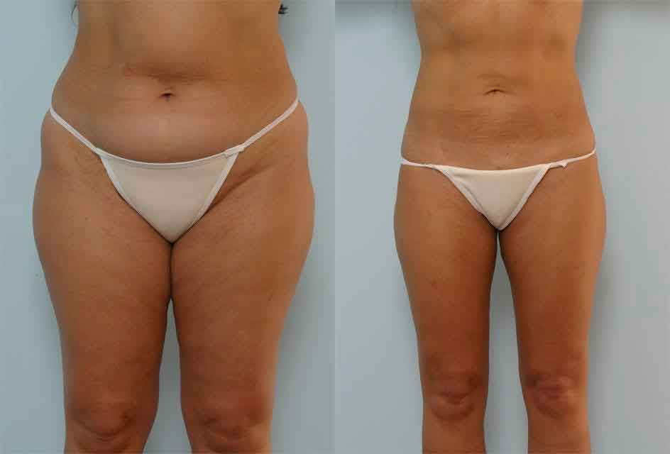 Liposuction recover process
