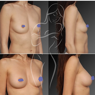 Breast Surgery Before After 38
