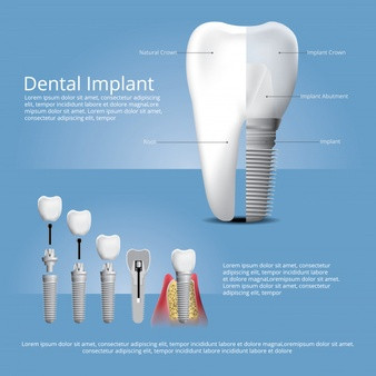 Dental implant prices - Implant brands