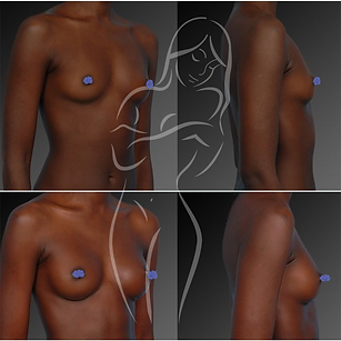 Breast Surgery Before After 1