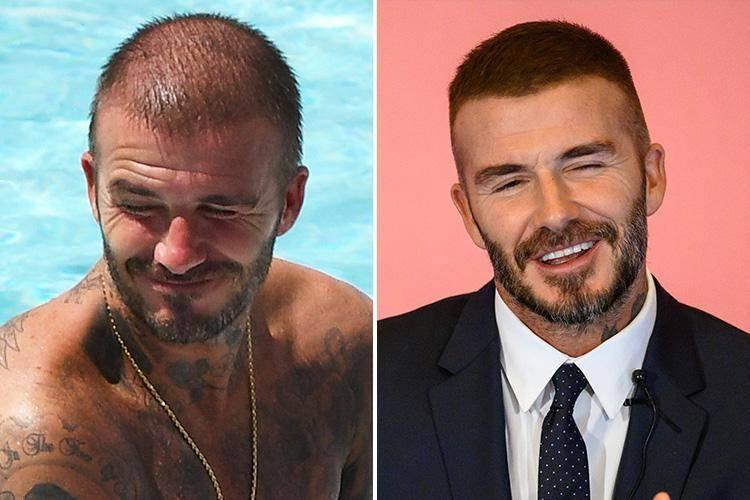 David Beckham hair transplant