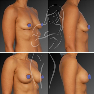 Breast Surgery Before After 12