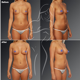 Liposuction before after 25
