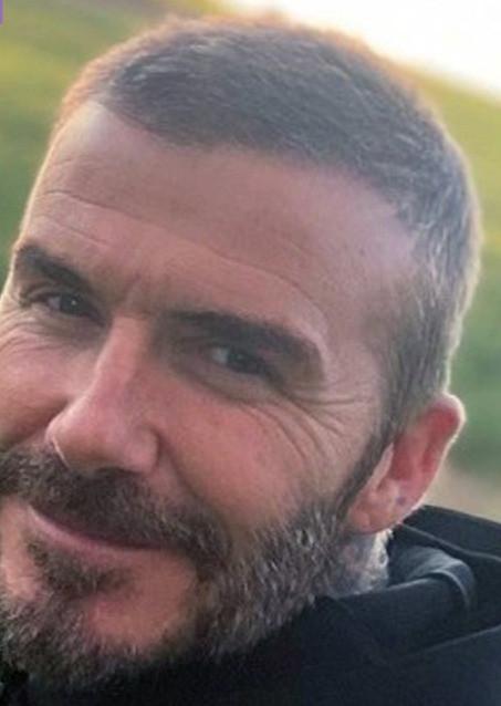 David Beckham after hair transplant