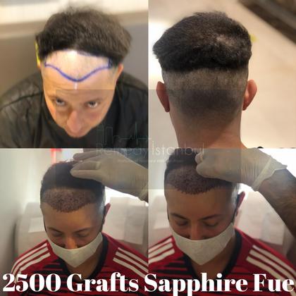 2500 Graft Sapphire Fue