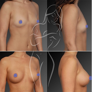 Breast Surgery Before After 2
