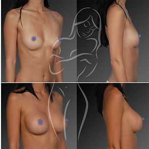 Breast Surgery Before After 11
