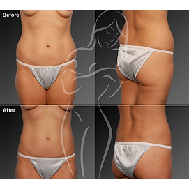 Liposuction before after 18