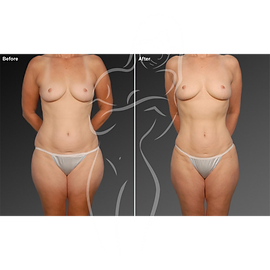 Liposuction before after 23