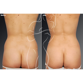 Liposuction before after 16