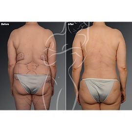 Liposuction before after 24