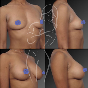 Breast Surgery Before After 9