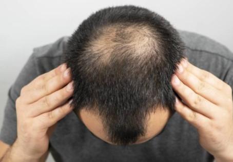 Quand la perte de cheveux commence-t-elle chez les hommes ?
