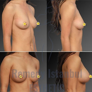 Breast Surgery Before After 36