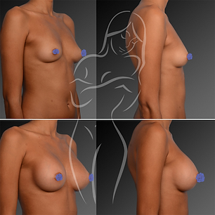 Breast Surgery Before After 22