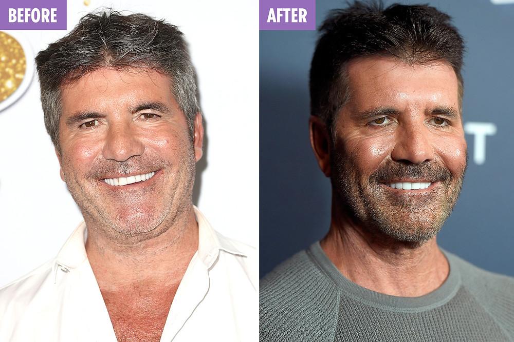 Simon cowell before plastic surgery