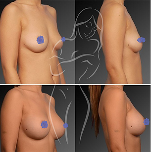 Breast Surgery Before After 10