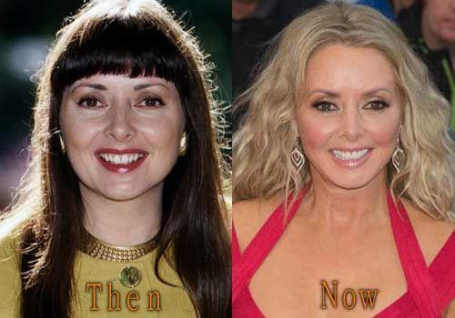 Carol Vorderman Before After