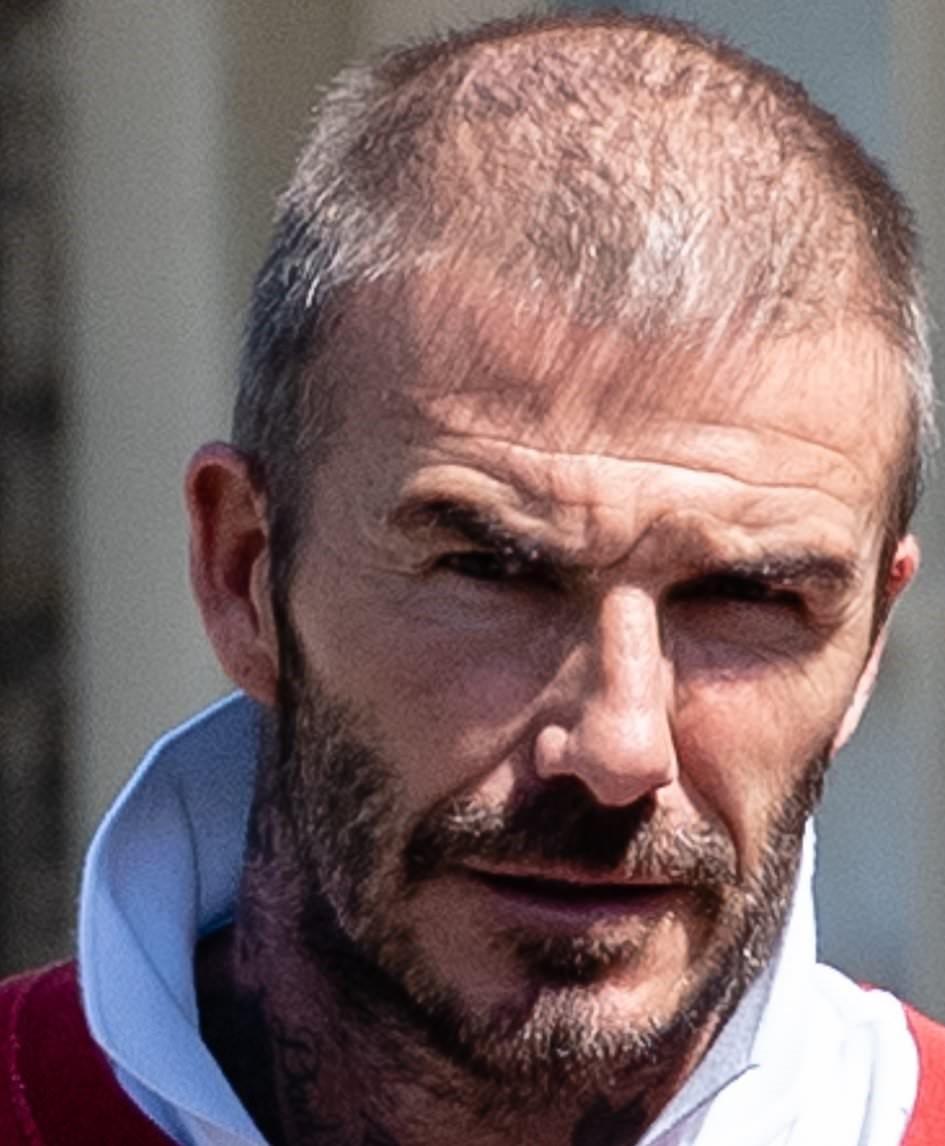 David Beckham before hair transplant