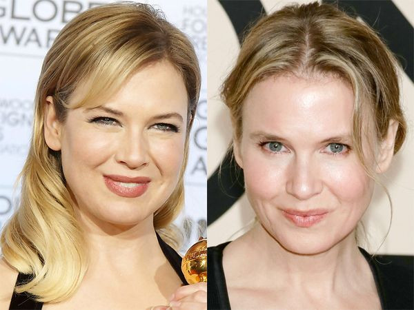 Renee Zellweger before and after plastic surgeries