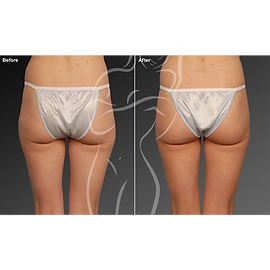 Liposuction before after 14