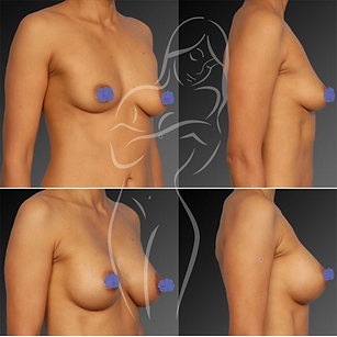 Breast Surgery Before After 13