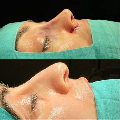 rhinoplasty before after 12