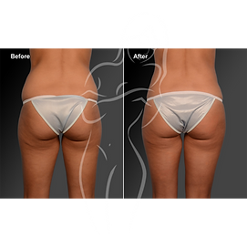Liposuction before after 12