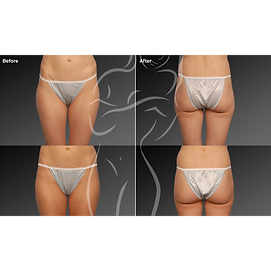 Liposuction before after 10