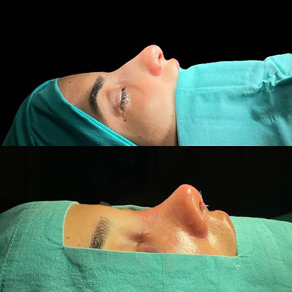 rhinoplasty before after 13