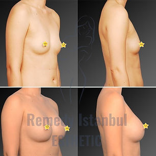 Breast Surgery Before After 32