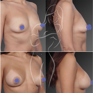 Breast Surgery Before After 15