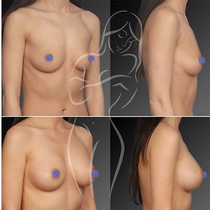Breast Surgery Before After 23