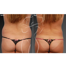 Liposuction before after 6