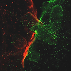 stem cell trans..png