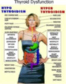 thyroid dysfunction