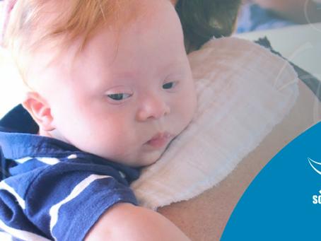 Como estimular a fala em um bebê com síndrome de Down