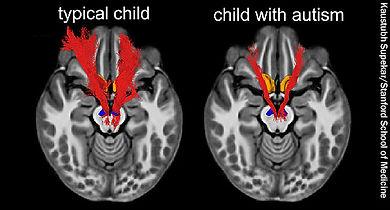 650x350_child_brain_autism.jpg