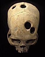 skull drilling.jpg