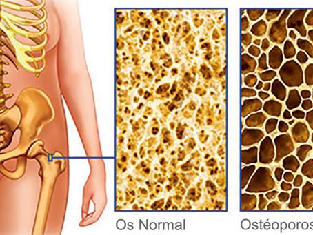 Comment les produits laitiers pasteurisés détruisent les os de l'intérieur
