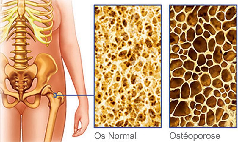 os . ostéoporose . processus de décalcification