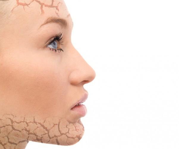 face dry skin