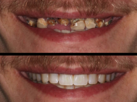Advances in Full Arch Implant Dentistry: Chrome Guided Surgery
